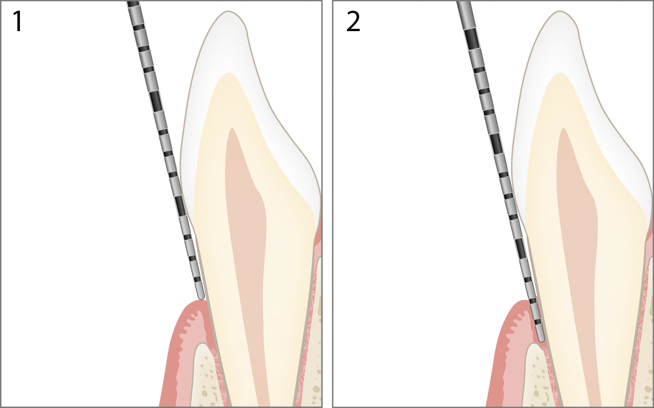 Probing gingival recession